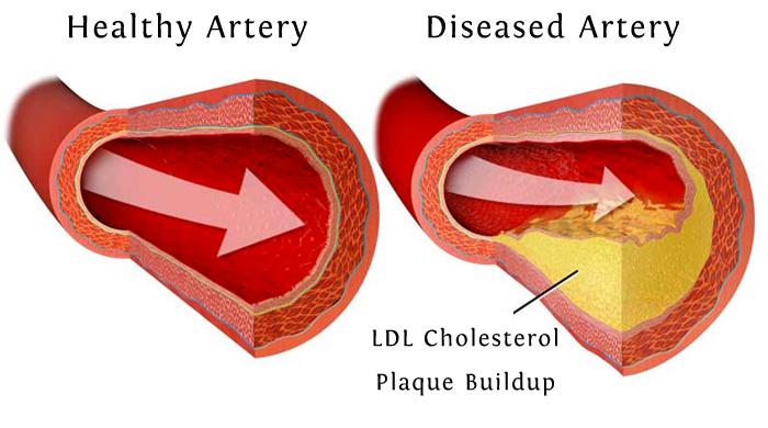 Healthy Artery